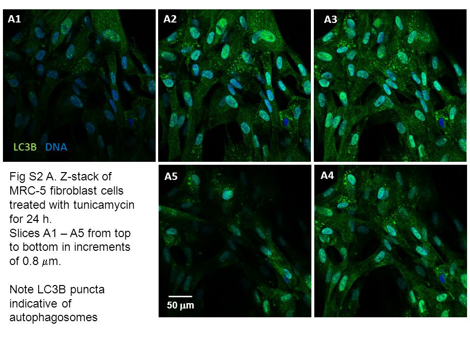 Fig.S2 B. Z-stack of MRC-5 fibroblast cels treated with tunicamycin for 24 h.