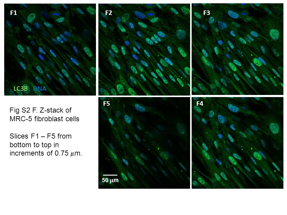 Fig S3.HeLa cells transiently transfected with PCMV_IE62 plasmid for 12 h.