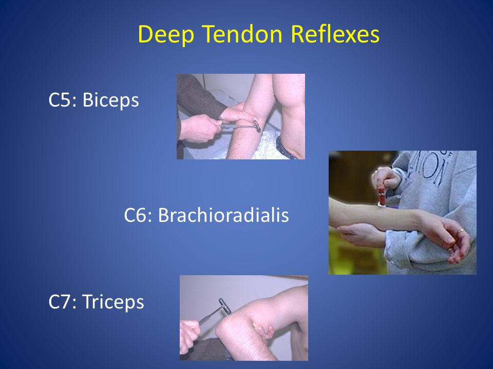 Deep Tendon Reflexes C5: Biceps C6: Brachioradialis C7: Triceps