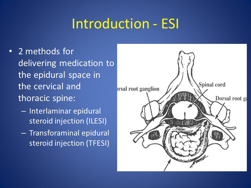 Introduction - ESI 2 methods for delivering medication to the epidural space in the cervical and thoracic spine: – Interlaminar epidural steroid injec