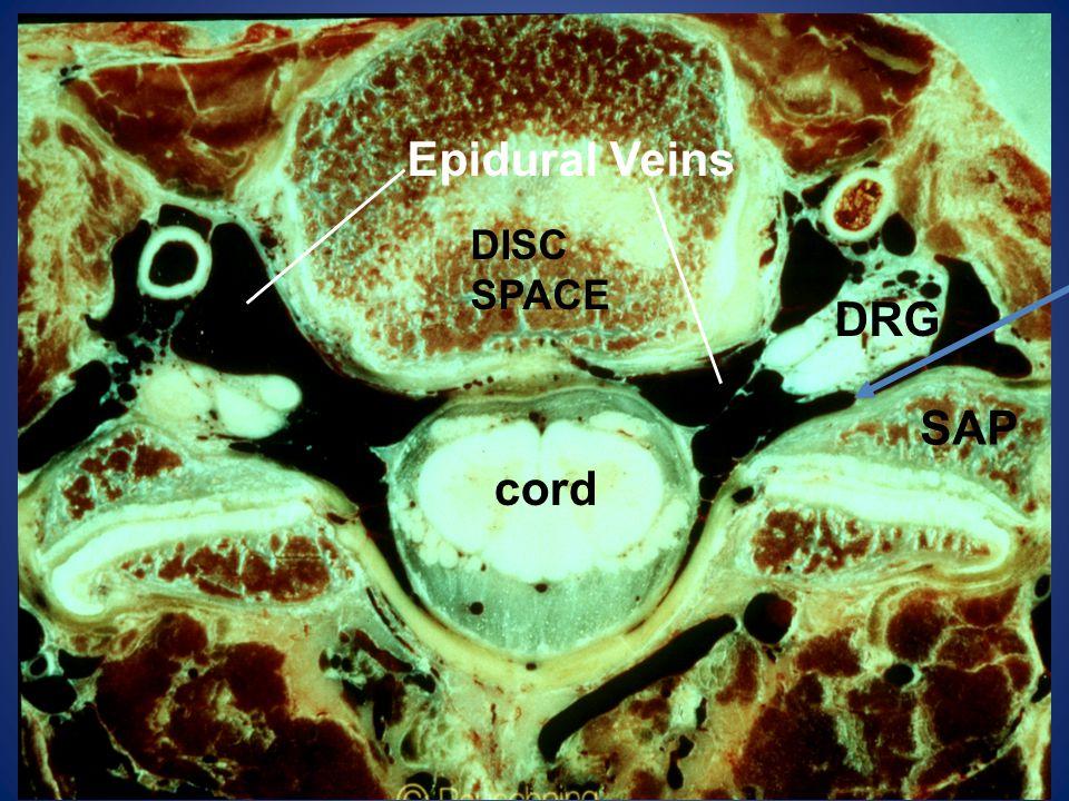 Epidural Veins DRG cord SAP DISC SPACE