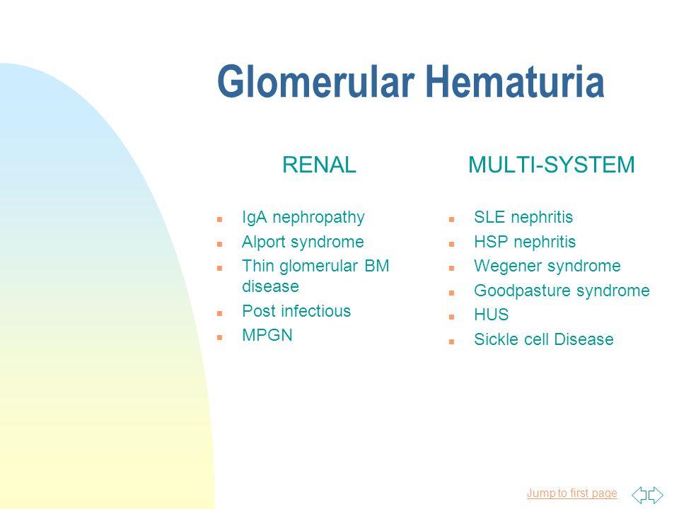 Glomerular Hematuria u brown, tea colored urine u proteinuria u deformed urinary RBCs u RBC casts