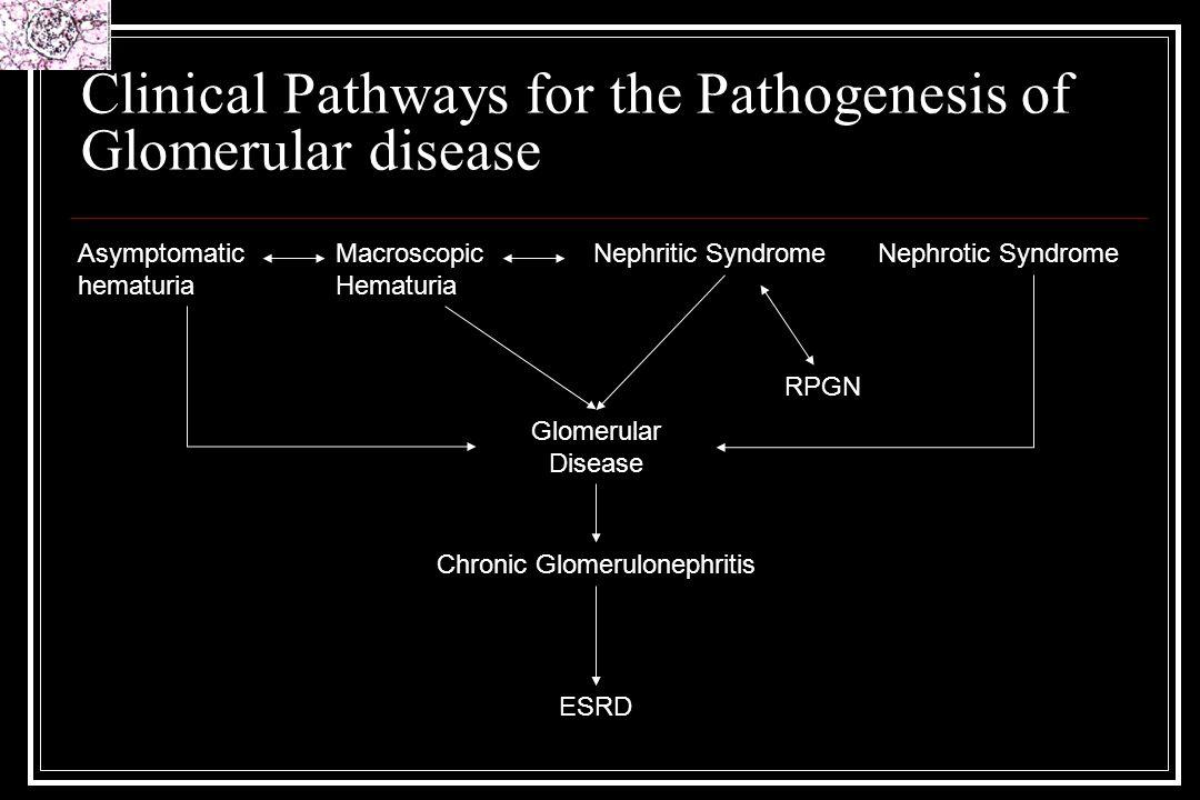 Clinical Pathways for the Pathogenesis of Glomerular disease Glomerular Disease Asymptomatic hematuria Macroscopic Hematuria Nephritic SyndromeNephrot