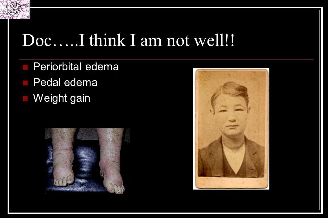 Doc…..I think I am not well!! Periorbital edema Pedal edema Weight gain