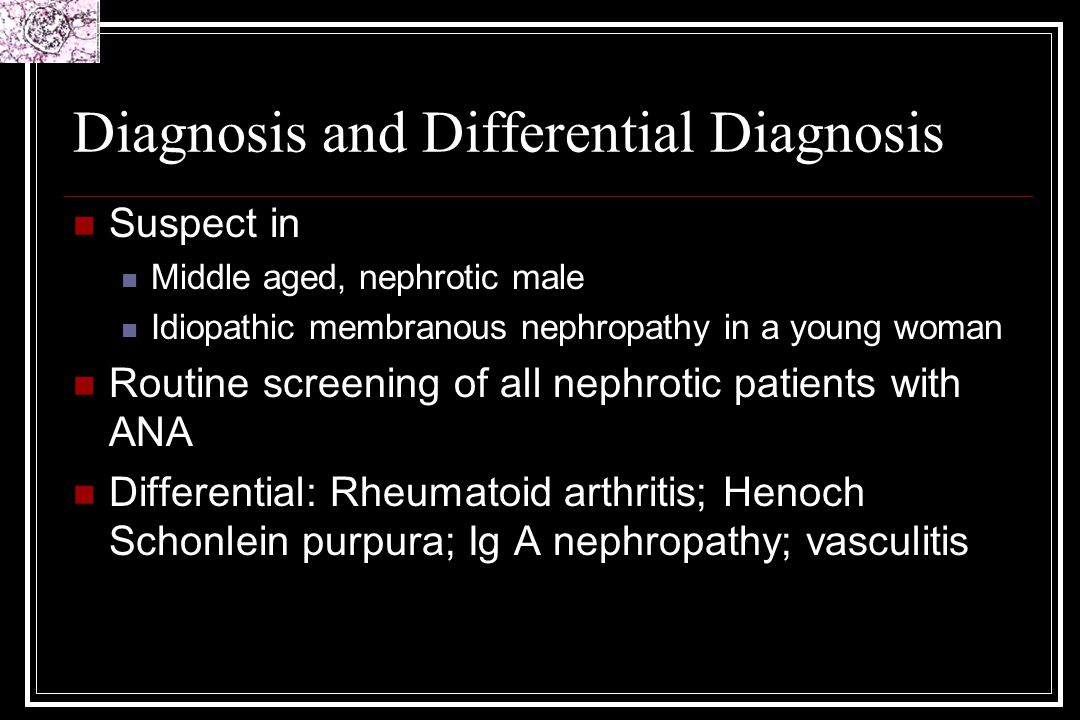 Diagnosis and Differential Diagnosis Suspect in Middle aged, nephrotic male Idiopathic membranous nephropathy in a young woman Routine screening of al