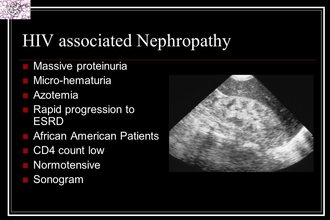 HIV associated Nephropathy Massive proteinuria Micro-hematuria Azotemia Rapid progression to ESRD African American Patients CD4 count low Normotensive