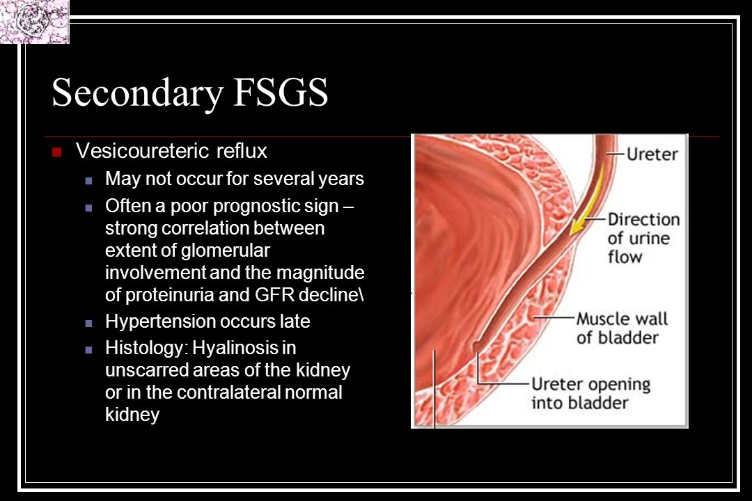 Secondary FSGS Vesicoureteric reflux May not occur for several years Often a poor prognostic sign – strong correlation between extent of glomerular in