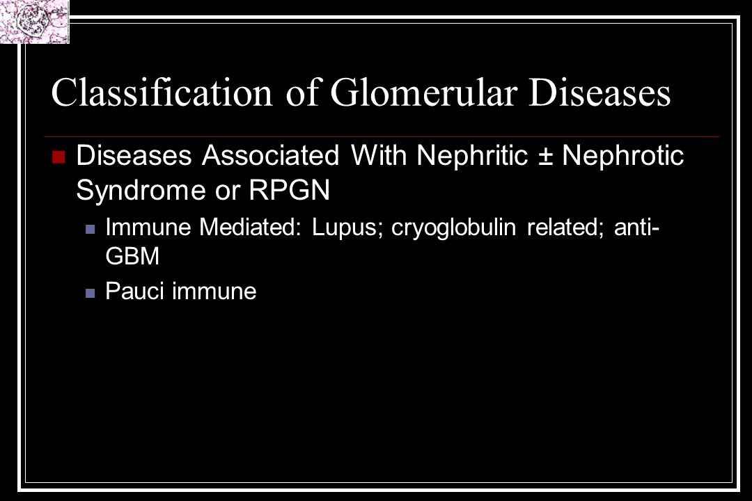 WHO Class V Lupus Nephritis Membranous 10-15% of biopsies Silver positive spikes – subepithelial Clinically nephrotic, often normal renal function Rx: Difficult to treat; Steroids; Ponticelli protocol