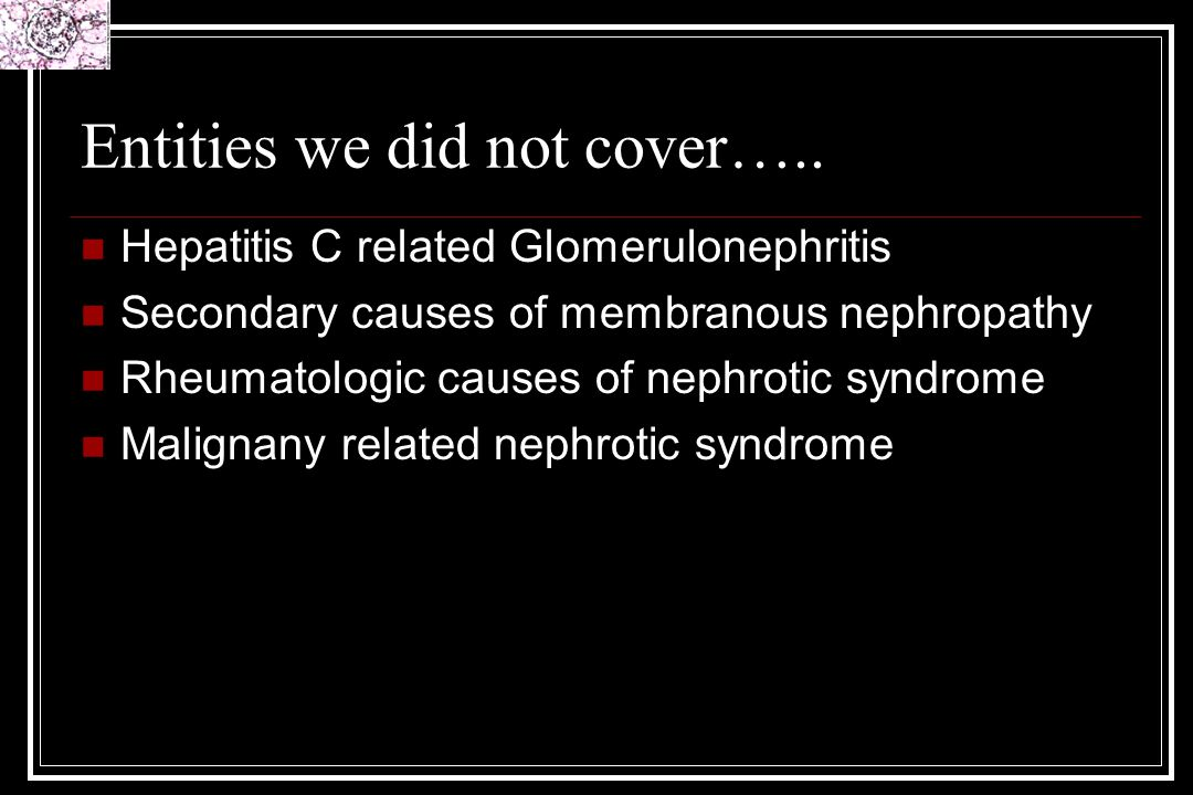 Entities we did not cover….. Hepatitis C related Glomerulonephritis Secondary causes of membranous nephropathy Rheumatologic causes of nephrotic syndr