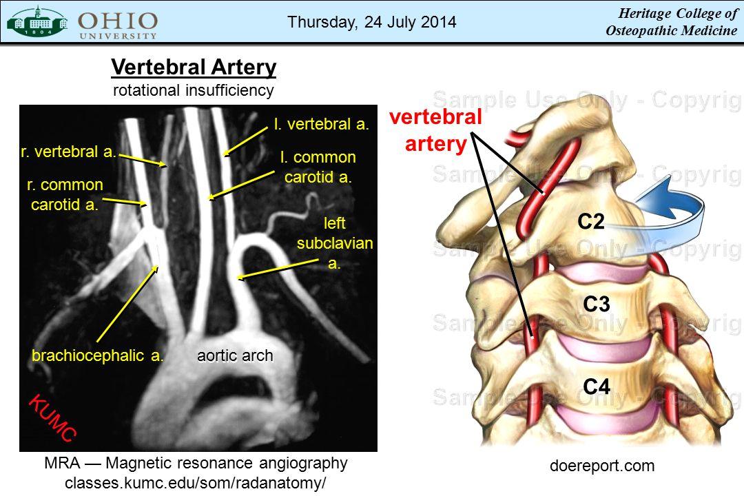 doereport.com C2 C4 C3 vertebral artery MRA — Magnetic resonance angiography classes.kumc.edu/som/radanatomy/ Vertebral Artery rotational insufficiency r.