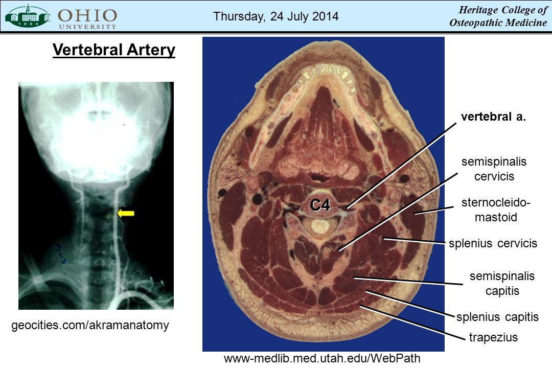 Vertebral Artery geocities.com/akramanatomy www-medlib.med.utah.edu/WebPath vertebral a.