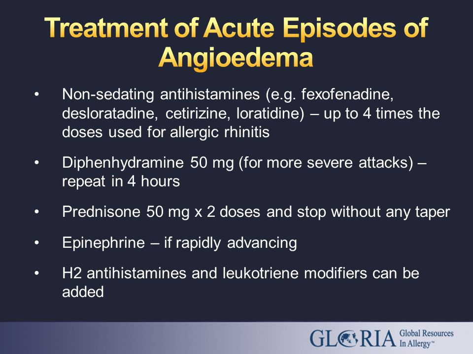 Non-sedating antihistamines (e.g.