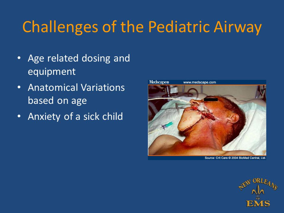 Challenges of the Pediatric Airway Age related dosing and equipment Anatomical Variations based on age Anxiety of a sick child