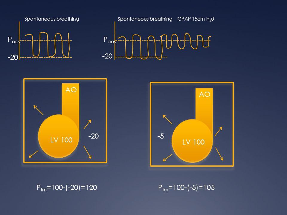 P oes Spontaneous breathing CPAP 15cm H 2 0 -20 AO LV 100 -20-5 LV 100 P tm =100-(-20)=120P tm =100-(-5)=105