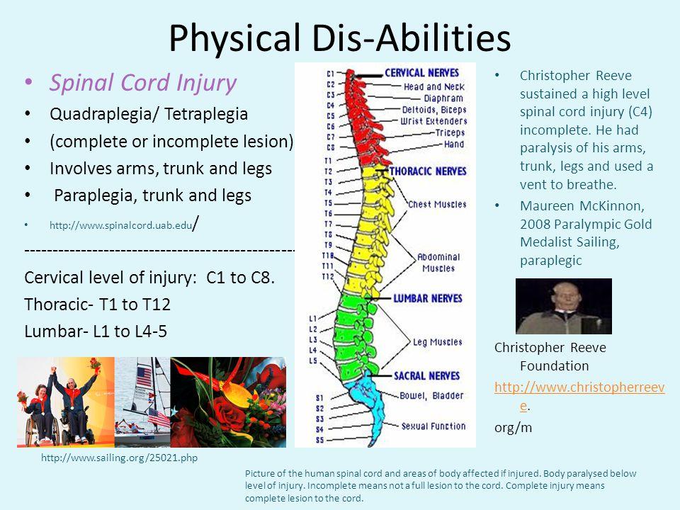 Physical Dis-Abilities Spinal Cord Injury Quadraplegia/ Tetraplegia (complete or incomplete lesion) Involves arms, trunk and legs Paraplegia, trunk an