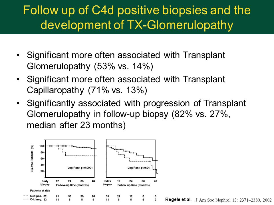 Follow up of C4d positive biopsies and the development of TX-Glomerulopathy Significant more often associated with Transplant Glomerulopathy (53% vs.