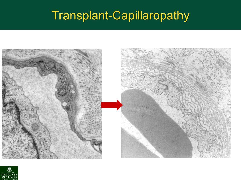 Transplant-Capillaropathy
