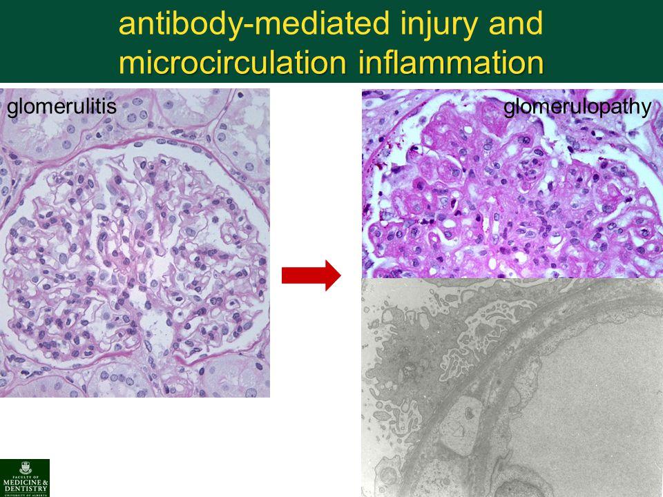 icrocirculation inflammation antibody-mediated injury and microcirculation inflammation glomerulitisglomerulopathy