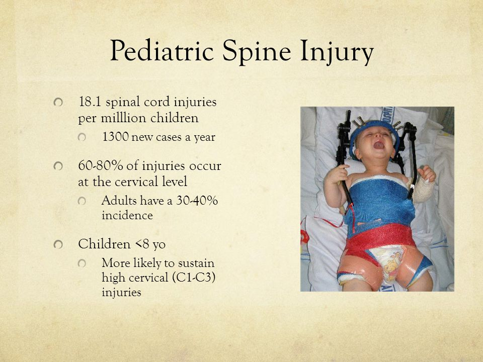 Pediatric Spine Injury 18.1 spinal cord injuries per milllion children 1300 new cases a year 60-80% of injuries occur at the cervical level Adults have a 30-40% incidence Children <8 yo More likely to sustain high cervical (C1-C3) injuries