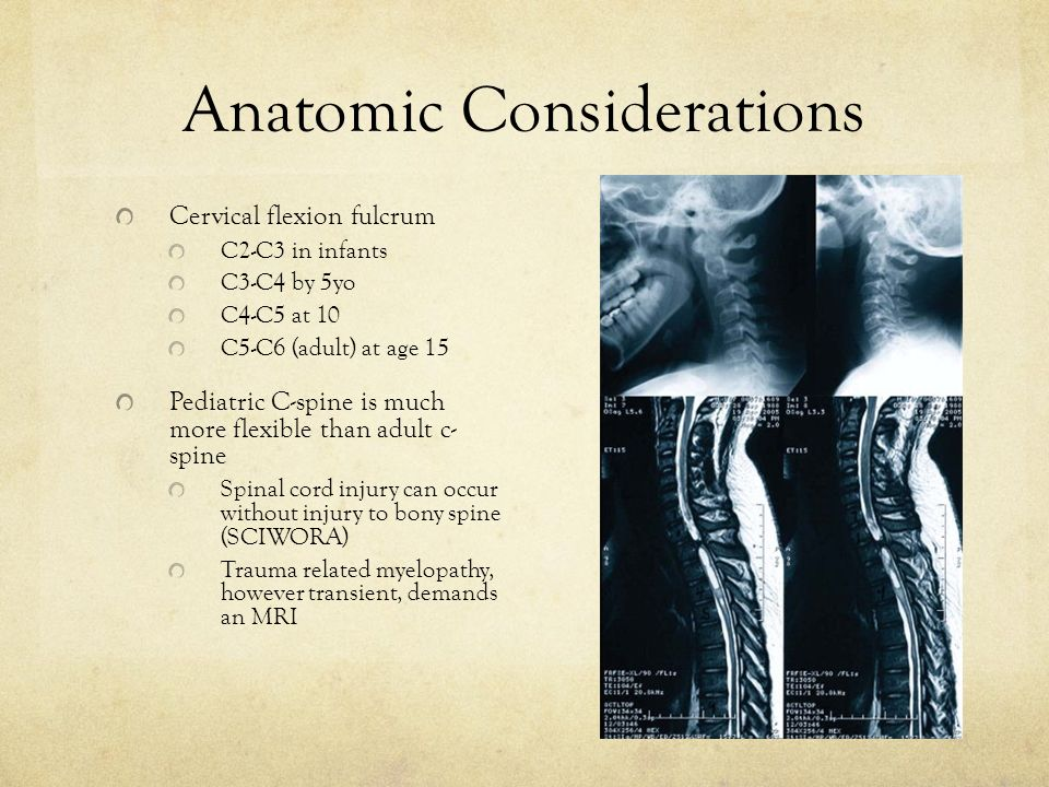 Anatomic Considerations Cervical flexion fulcrum C2-C3 in infants C3-C4 by 5yo C4-C5 at 10 C5-C6 (adult) at age 15 Pediatric C-spine is much more flexible than adult c- spine Spinal cord injury can occur without injury to bony spine (SCIWORA) Trauma related myelopathy, however transient, demands an MRI