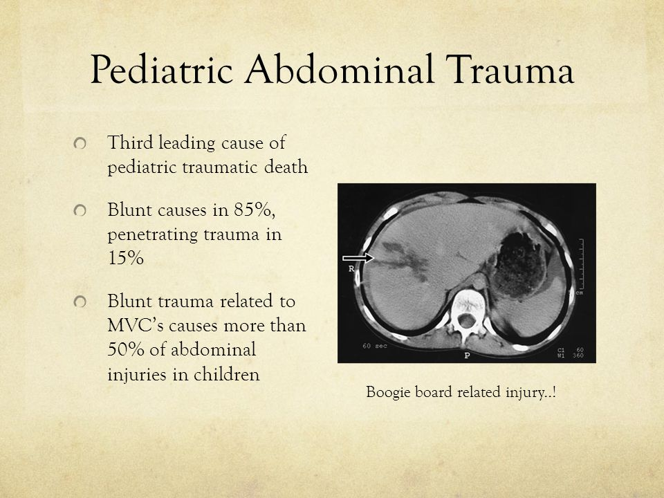 Pediatric Abdominal Trauma Third leading cause of pediatric traumatic death Blunt causes in 85%, penetrating trauma in 15% Blunt trauma related to MVC's causes more than 50% of abdominal injuries in children Boogie board related injury..!