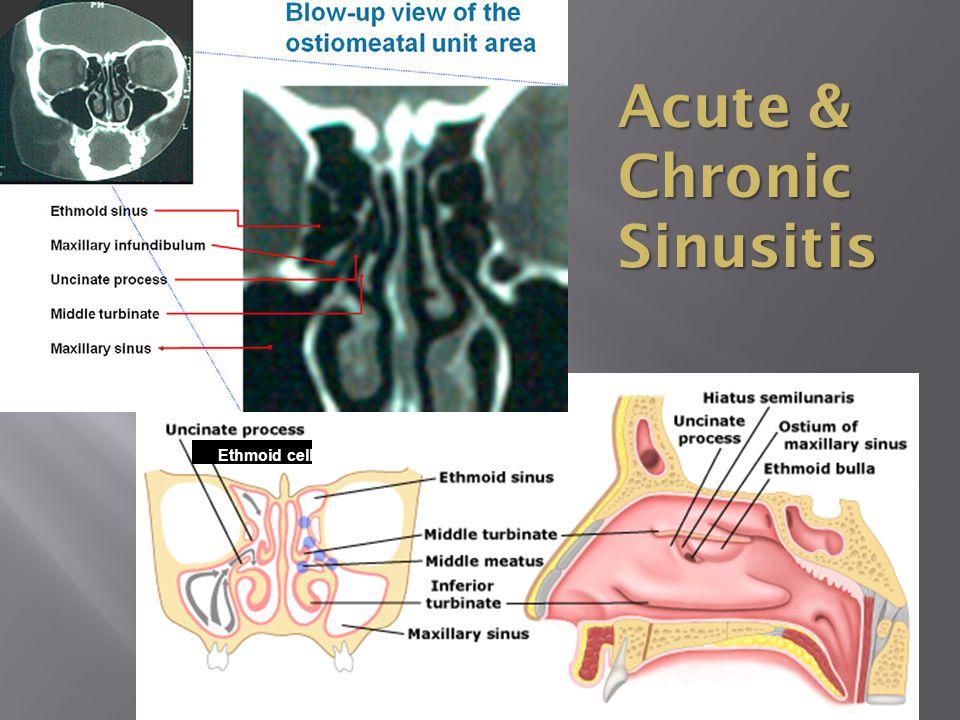 33 Acute & Chronic Sinusitis Ethmoid cell