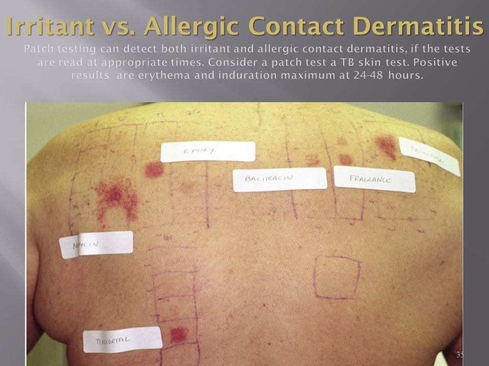 35 Irritant vs. Allergic Contact Dermatitis