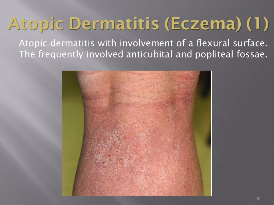 38 Atopic dermatitis with involvement of a flexural surface. The frequently involved anticubital and popliteal fossae. Atopic Dermatitis (Eczema) (1)