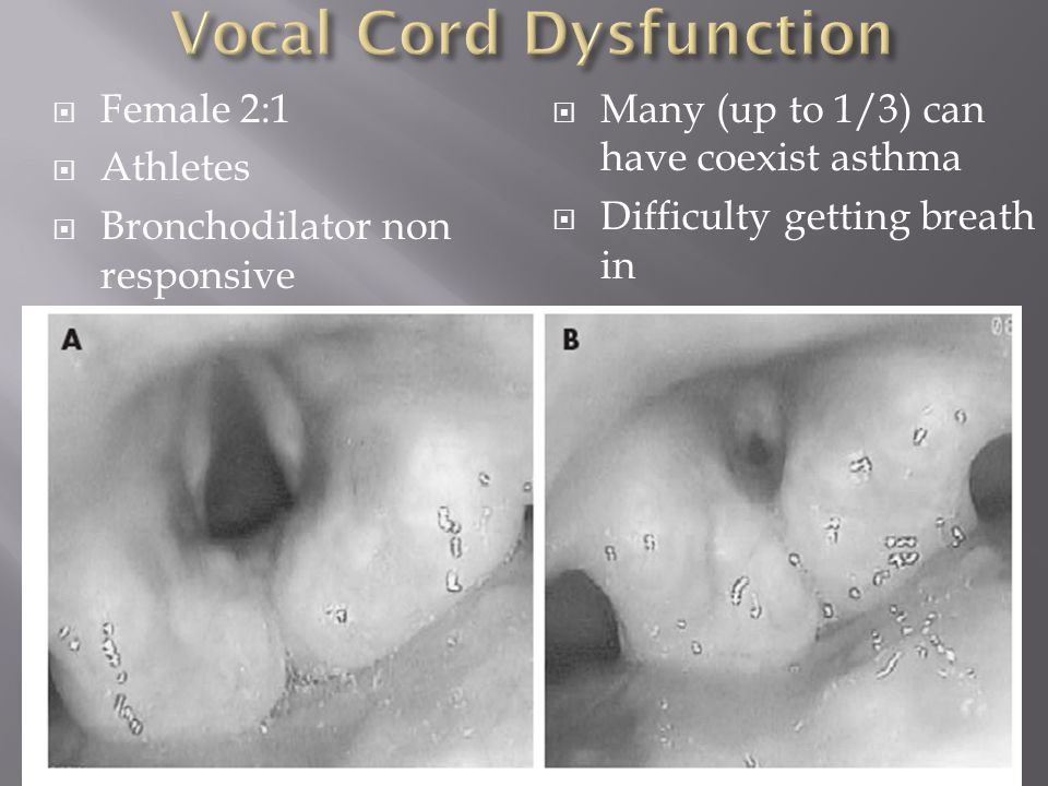  Female 2:1  Athletes  Bronchodilator non responsive  Many (up to 1/3) can have coexist asthma  Difficulty getting breath in 7