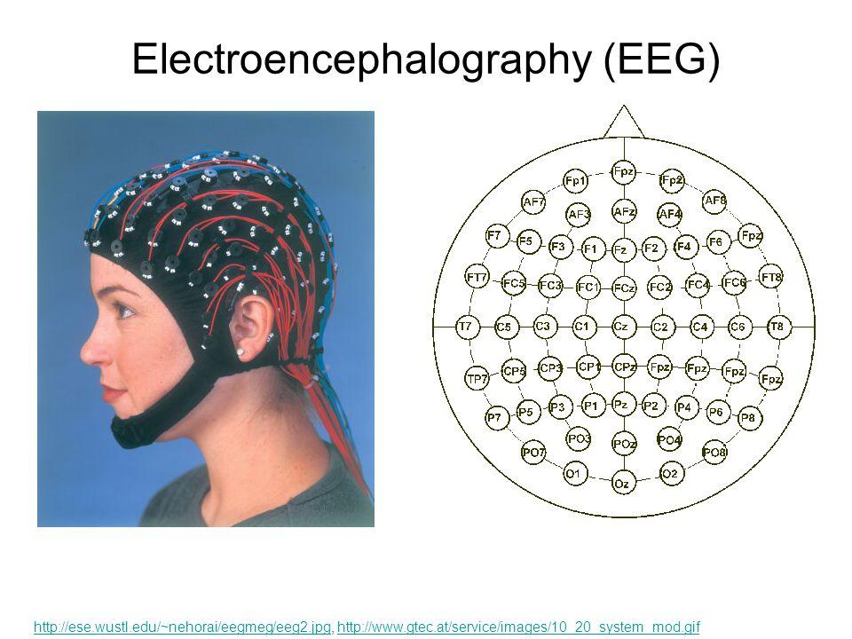Electroencephalography (EEG) http://ese.wustl.edu/~nehorai/eegmeg/eeg2.jpghttp://ese.wustl.edu/~nehorai/eegmeg/eeg2.jpg, http://www.gtec.at/service/images/10_20_system_mod.gifhttp://www.gtec.at/service/images/10_20_system_mod.gif