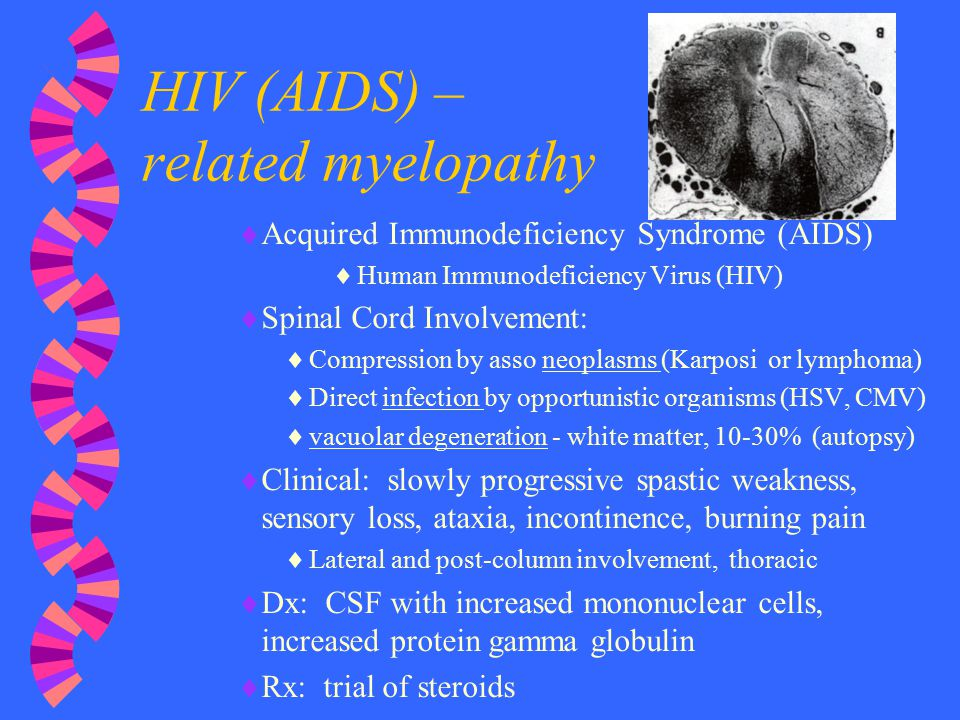 HIV (AIDS) – related myelopathy  Acquired Immunodeficiency Syndrome (AIDS)  Human Immunodeficiency Virus (HIV)  Spinal Cord Involvement:  Compress