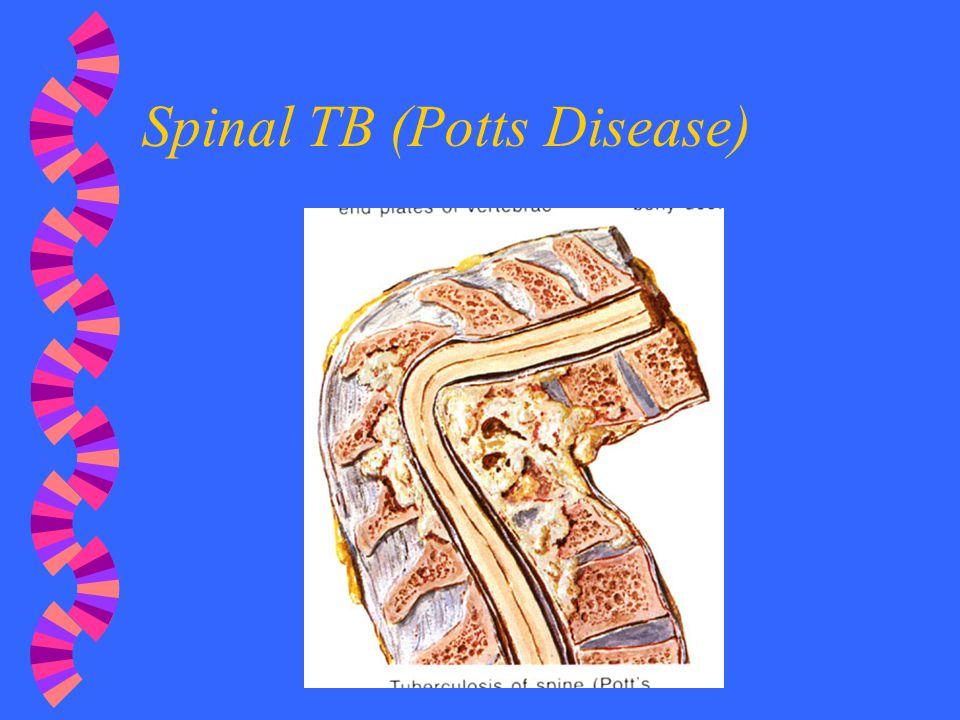 Spinal TB (Potts Disease)
