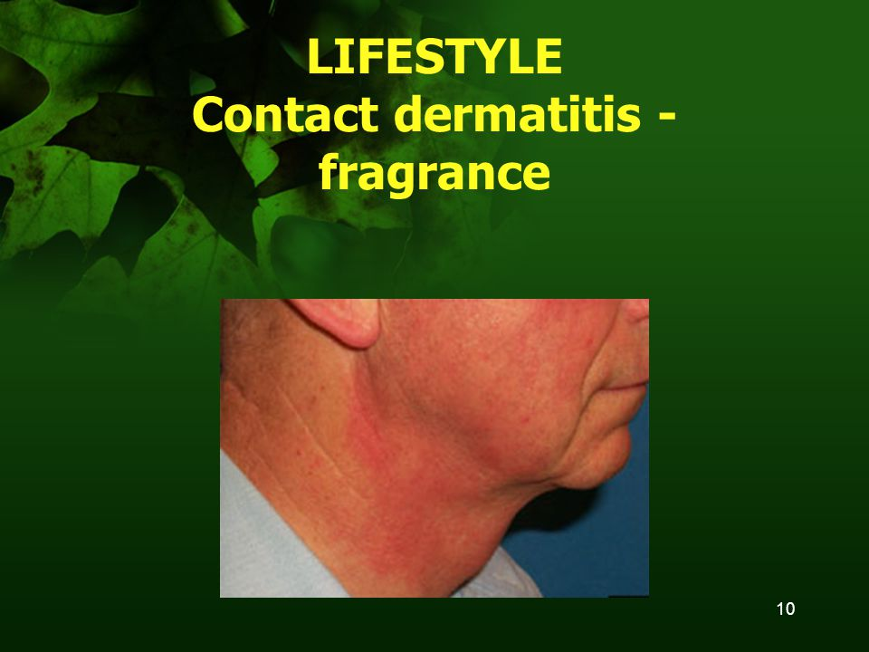 10 LIFESTYLE Contact dermatitis - fragrance