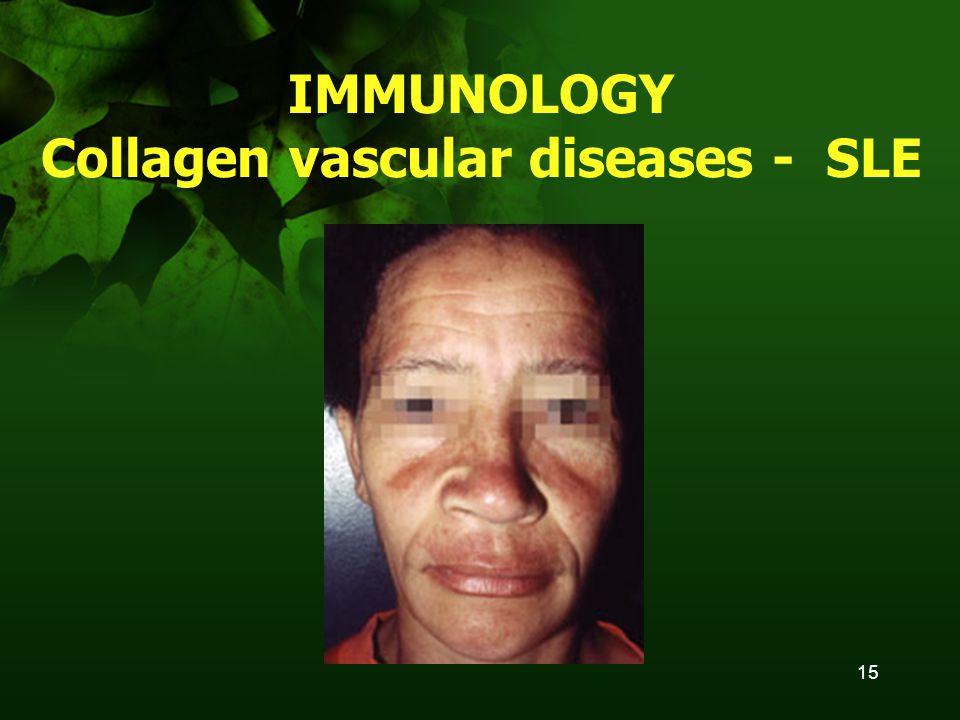 15 IMMUNOLOGY Collagen vascular diseases - SLE