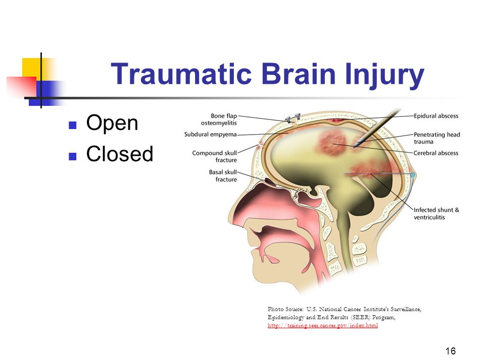 16 Traumatic Brain Injury Open Closed Photo Source: U.S.