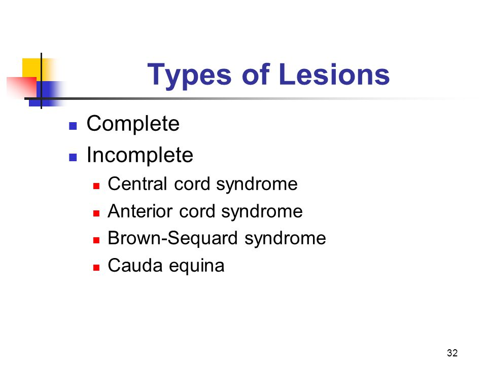 32 Types of Lesions Complete Incomplete Central cord syndrome Anterior cord syndrome Brown-Sequard syndrome Cauda equina