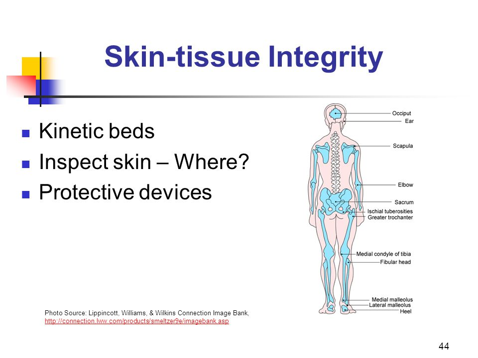 44 Skin-tissue Integrity Kinetic beds Inspect skin – Where.