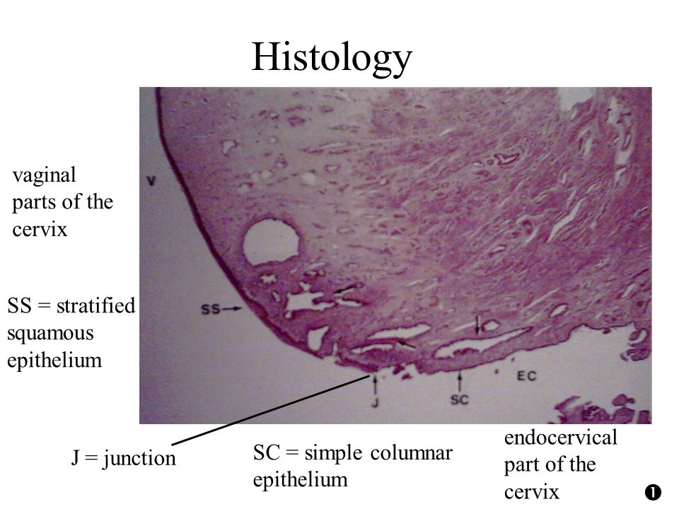 Histology vaginal parts of the cervix endocervical part of the cervix J = junction SS = stratified squamous epithelium SC = simple columnar epithelium 