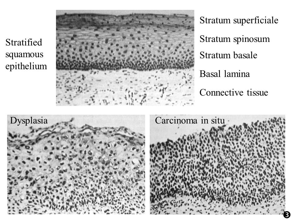 Basal lamina Stratum basale Stratum spinosum Stratum superficiale Stratified squamous epithelium DysplasiaCarcinoma in situ Connective tissue 