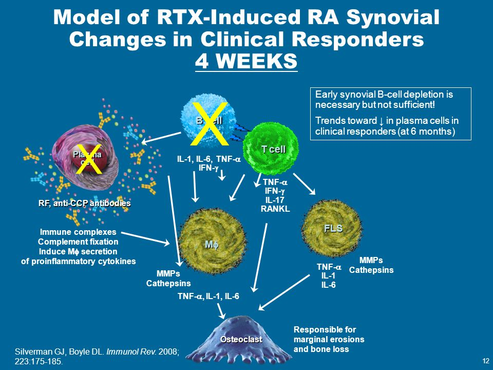 12 Model of RTX-Induced RA Synovial Changes in Clinical Responders 4 WEEKS IL-1, IL-6, TNF-  IFN-  T cell MM MM Immune complexes Complement fixa