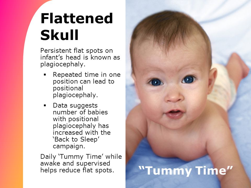 Tummy Time Flattened Skull Persistent flat spots on infant's head is known as plagiocephaly.