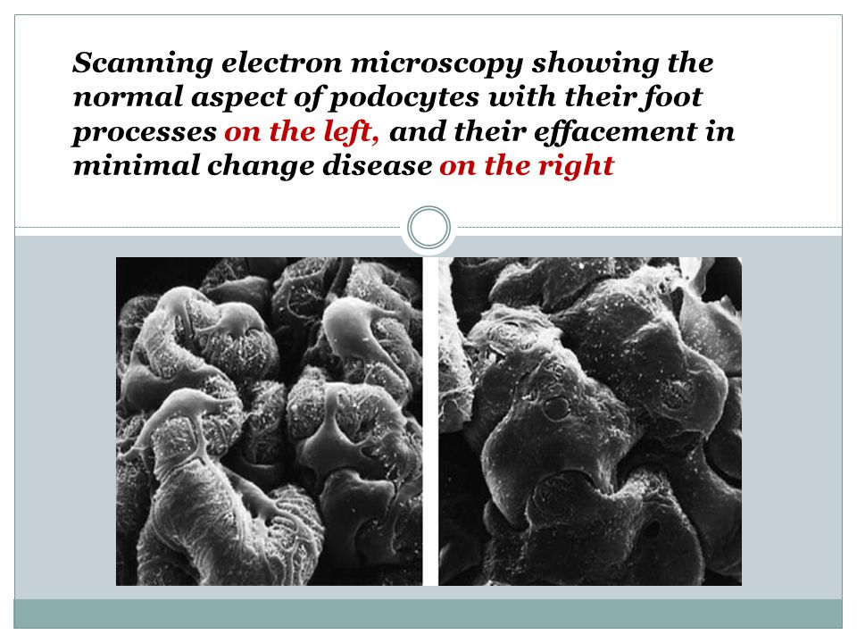 Scanning electron microscopy showing the normal aspect of podocytes with their foot processes on the left, and their effacement in minimal change disease on the right