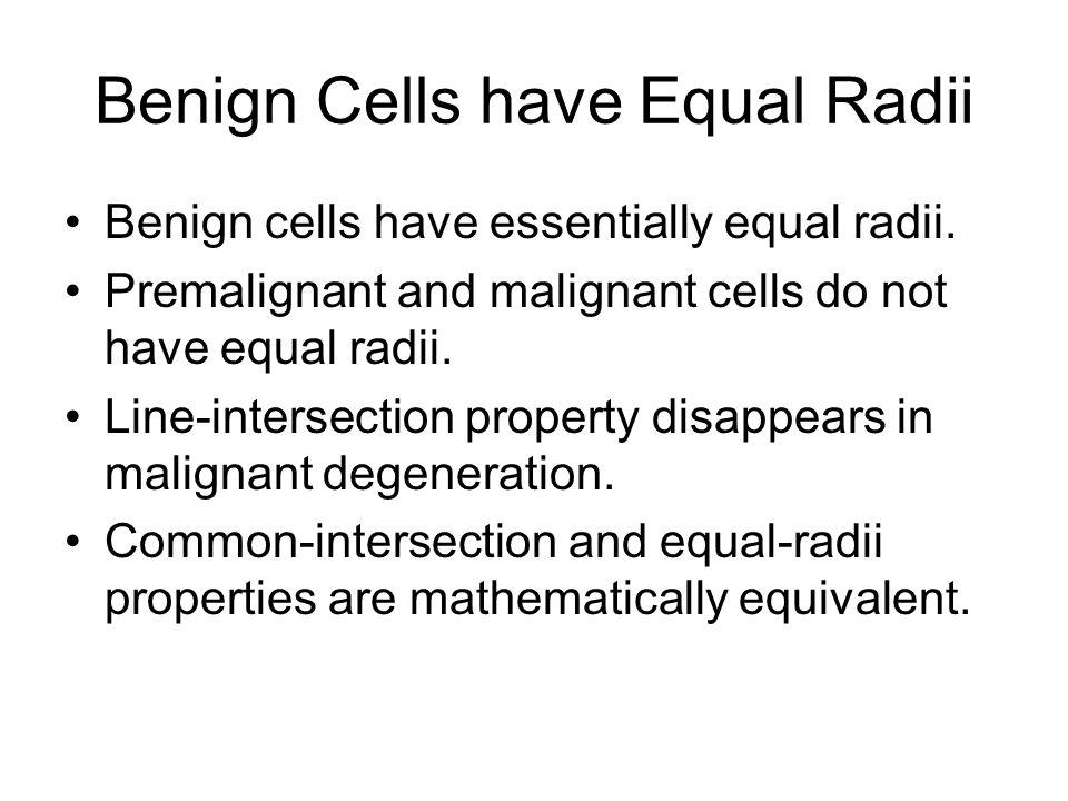 Benign Cells have Equal Radii Benign cells have essentially equal radii.