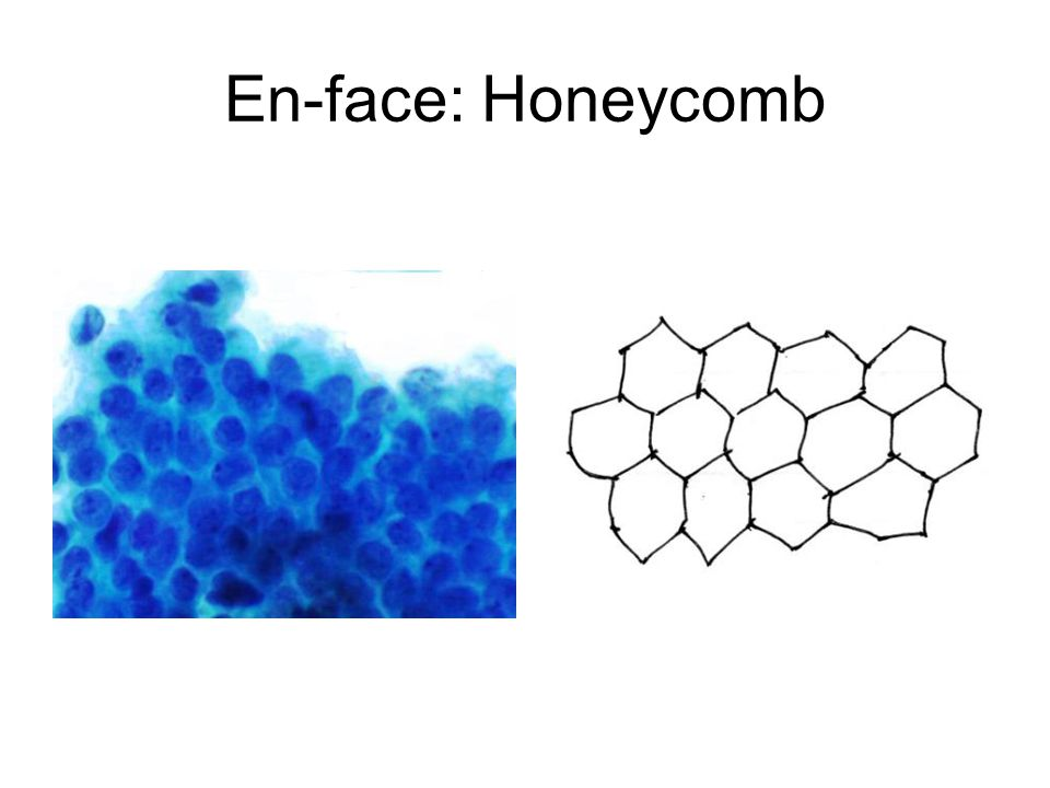 En-face: Honeycomb