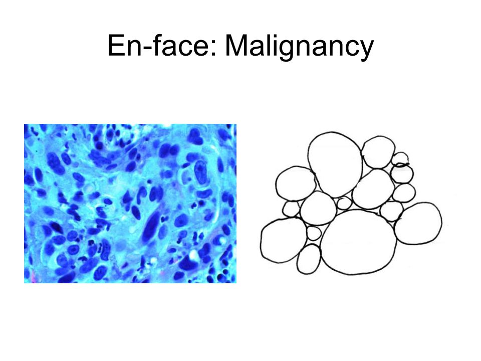 En-face: Malignancy