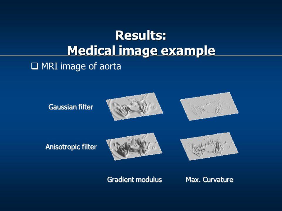  MRI image of aorta Gradient modulus Max.