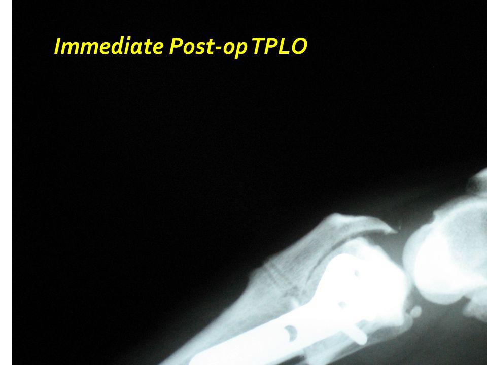 Immediate Post-op TPLO