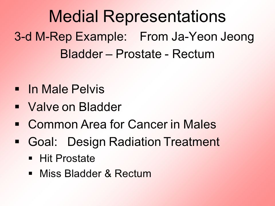 Medial Representations 3-d M-Rep Example: From Ja-Yeon Jeong Bladder – Prostate - Rectum  In Male Pelvis  Valve on Bladder  Common Area for Cancer in Males  Goal: Design Radiation Treatment  Hit Prostate  Miss Bladder & Rectum