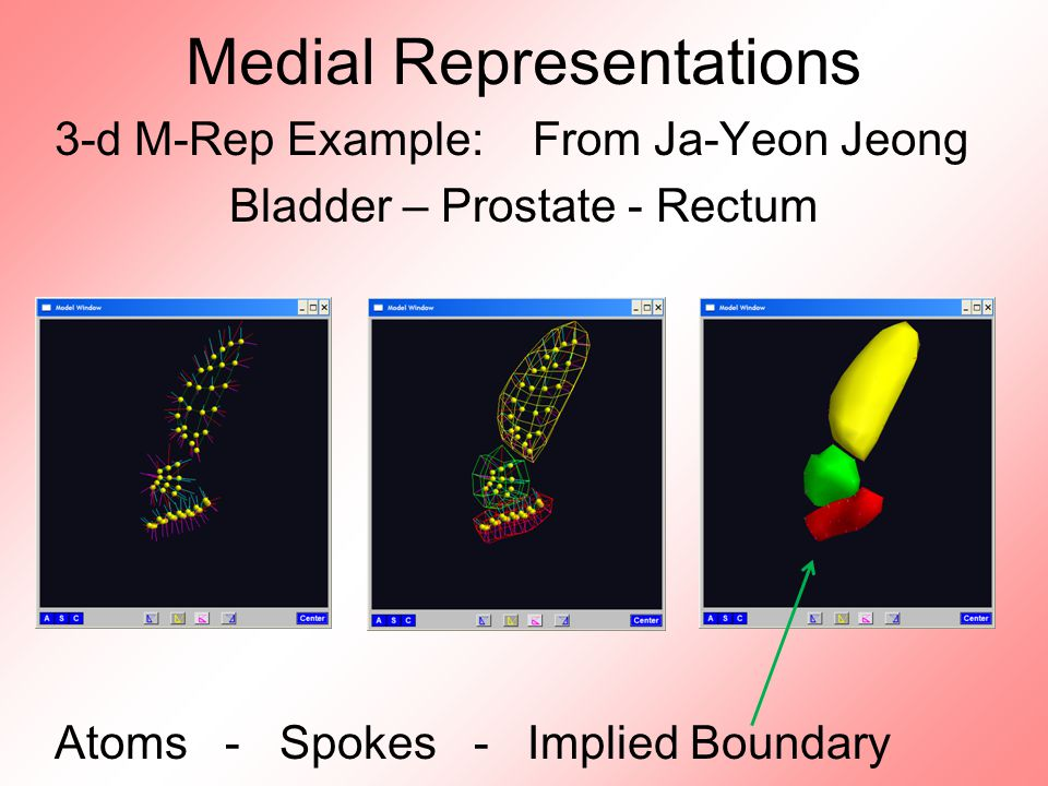 Medial Representations 3-d M-Rep Example: From Ja-Yeon Jeong Bladder – Prostate - Rectum Atoms - Spokes - Implied Boundary