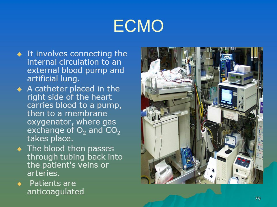 79 ECMO   It involves connecting the internal circulation to an external blood pump and artificial lung.   A catheter placed in the right side of